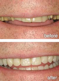 services-dentures1